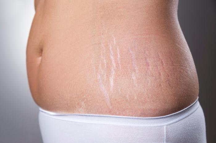postpartum stretch marks
